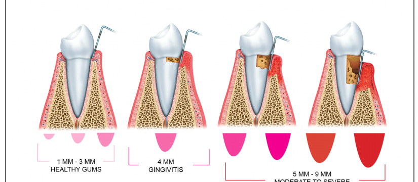 Eatonville Dental
